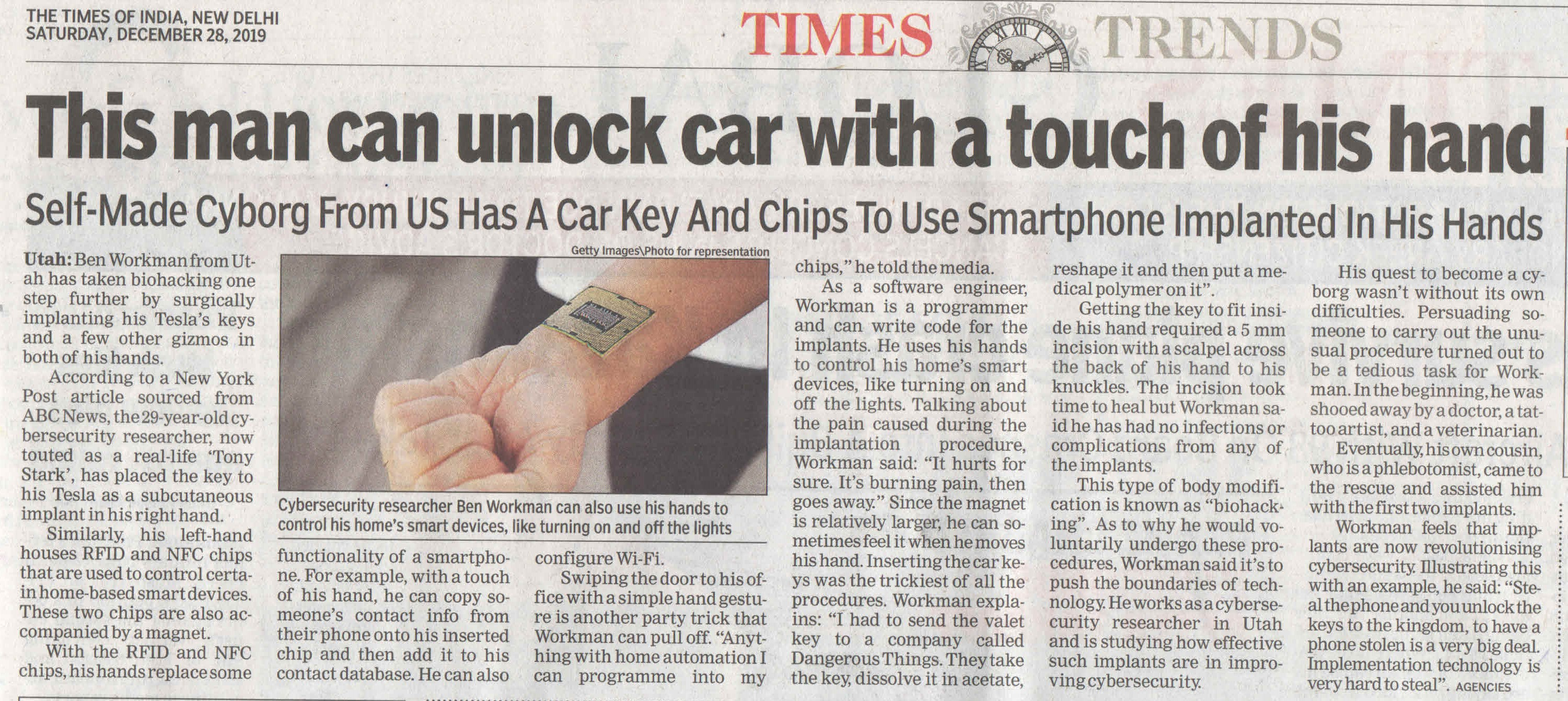 This man can unlock car with a touch of his hand